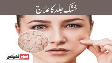 خشک جلد کے علاج