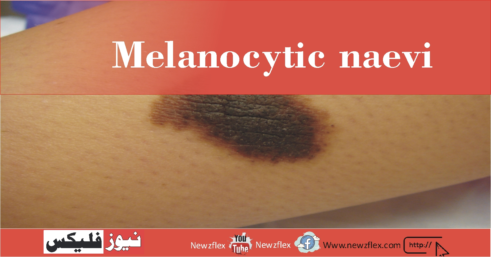 Melanocytic naevi