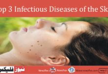 Top 3 Infectious Diseases of the Skin: